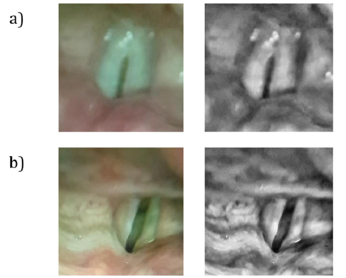 Images taken from inside the vocal cords of healthy (top) and unhealthy (bottom) vocal cords.